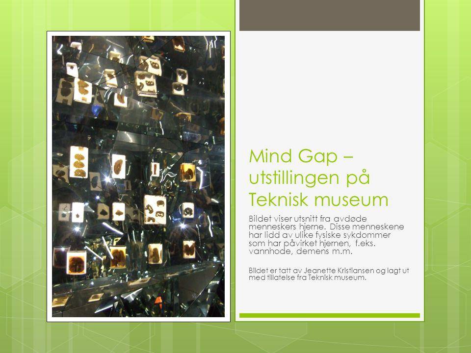 Mind Gap – utstillingen på Teknisk museum Bildet viser utsnitt fra avdøde menneskers hjerne. Disse menneskene har lidd av ulike fysiske sykdommer som