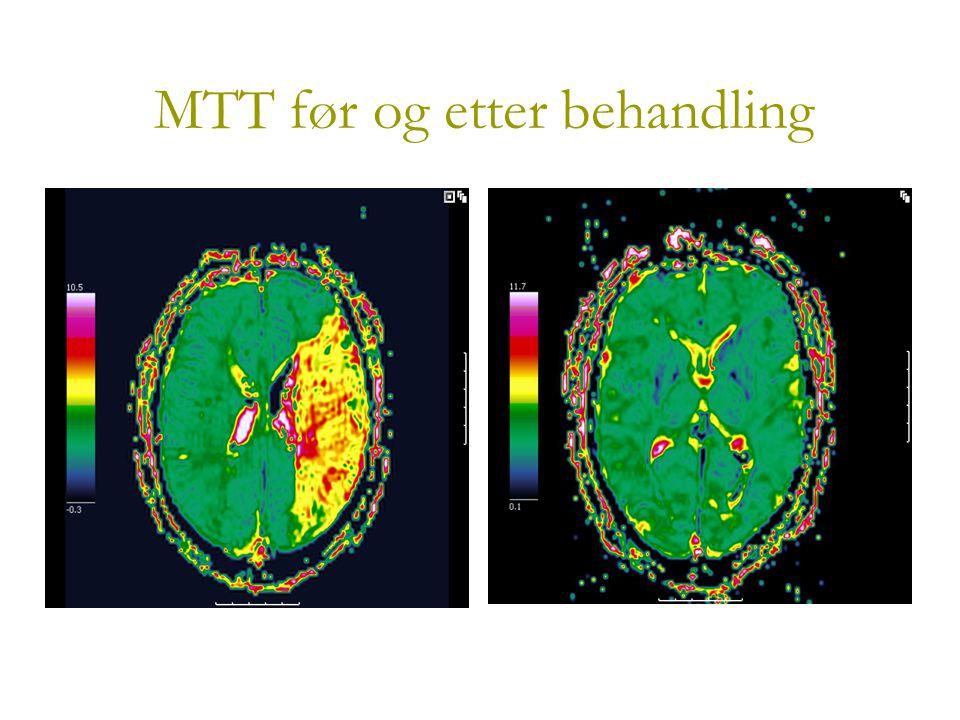 MTT før og etter behandling