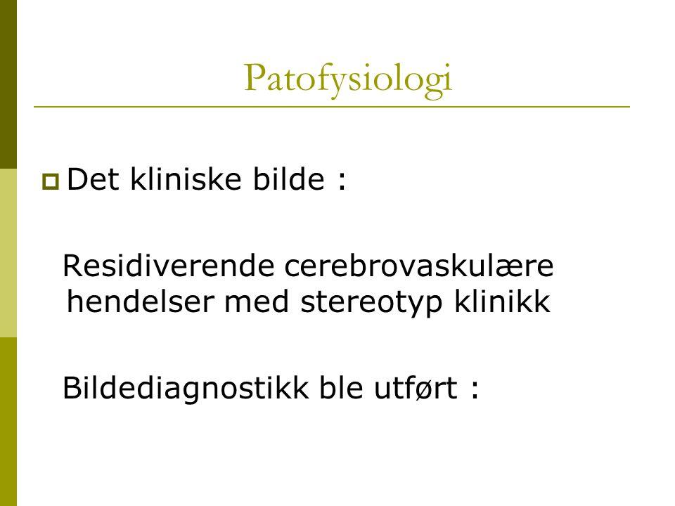 Patofysiologi  Det kliniske bilde : Residiverende cerebrovaskulære hendelser med stereotyp klinikk Bildediagnostikk ble utført :