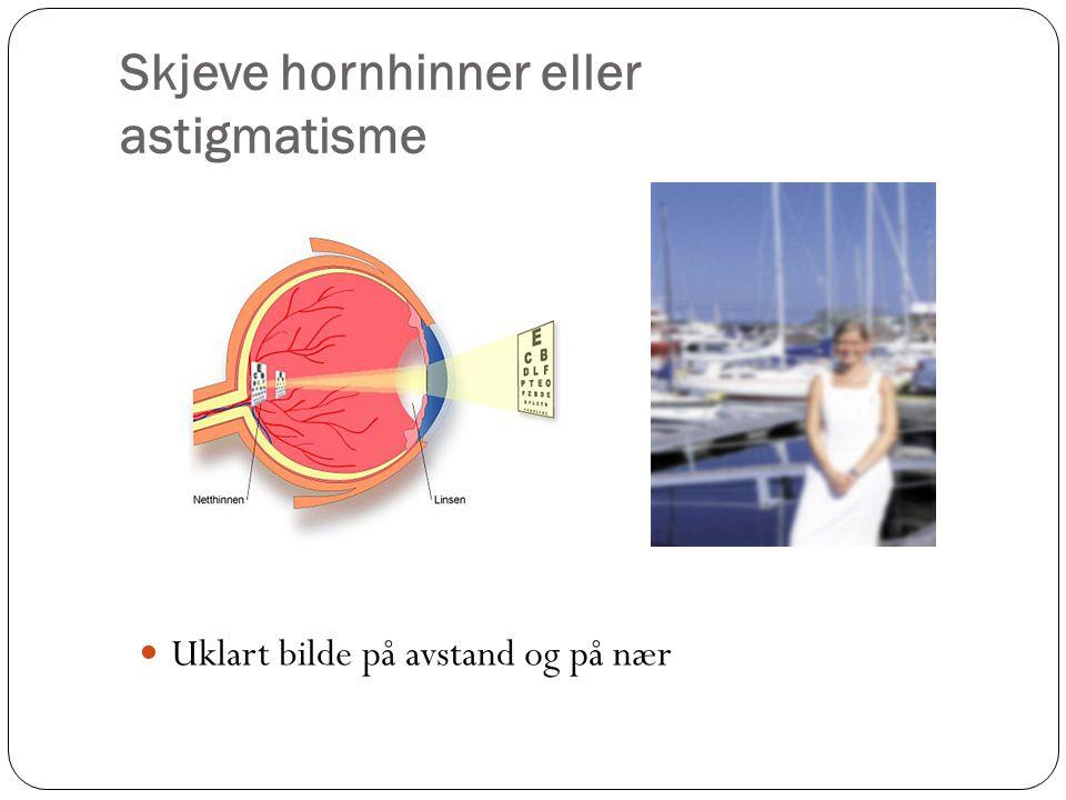 Skjeve hornhinner eller astigmatisme  Uklart bilde på avstand og på nær
