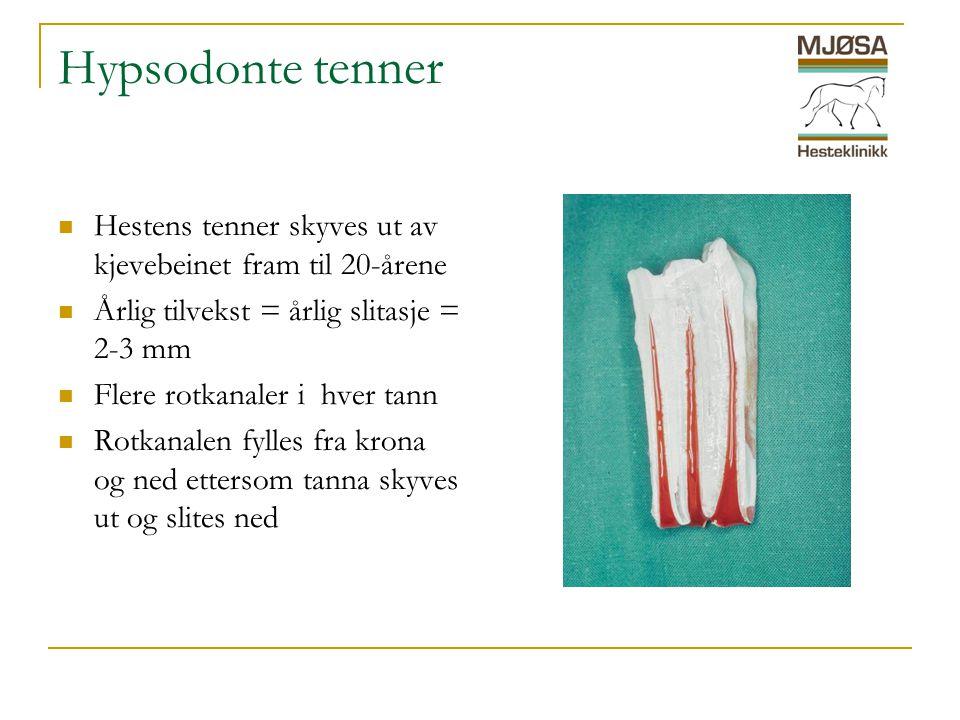Hypsodonte tenner  Hestens tenner skyves ut av kjevebeinet fram til 20-årene  Årlig tilvekst = årlig slitasje = 2-3 mm  Flere rotkanaler i hver tann  Rotkanalen fylles fra krona og ned ettersom tanna skyves ut og slites ned