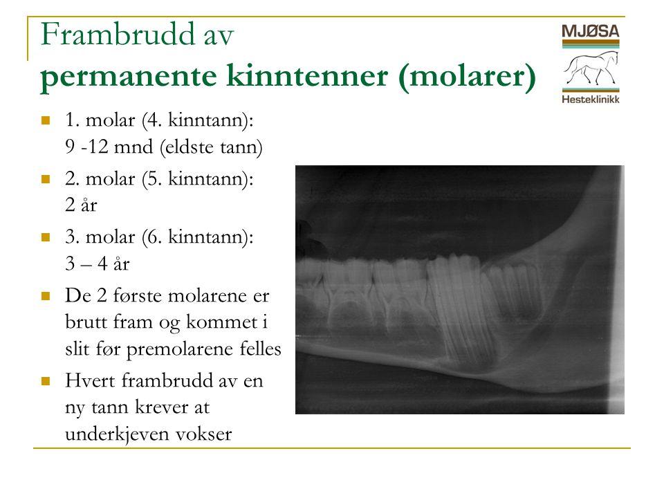 Frambrudd av permanente kinntenner (molarer)  1.molar (4.