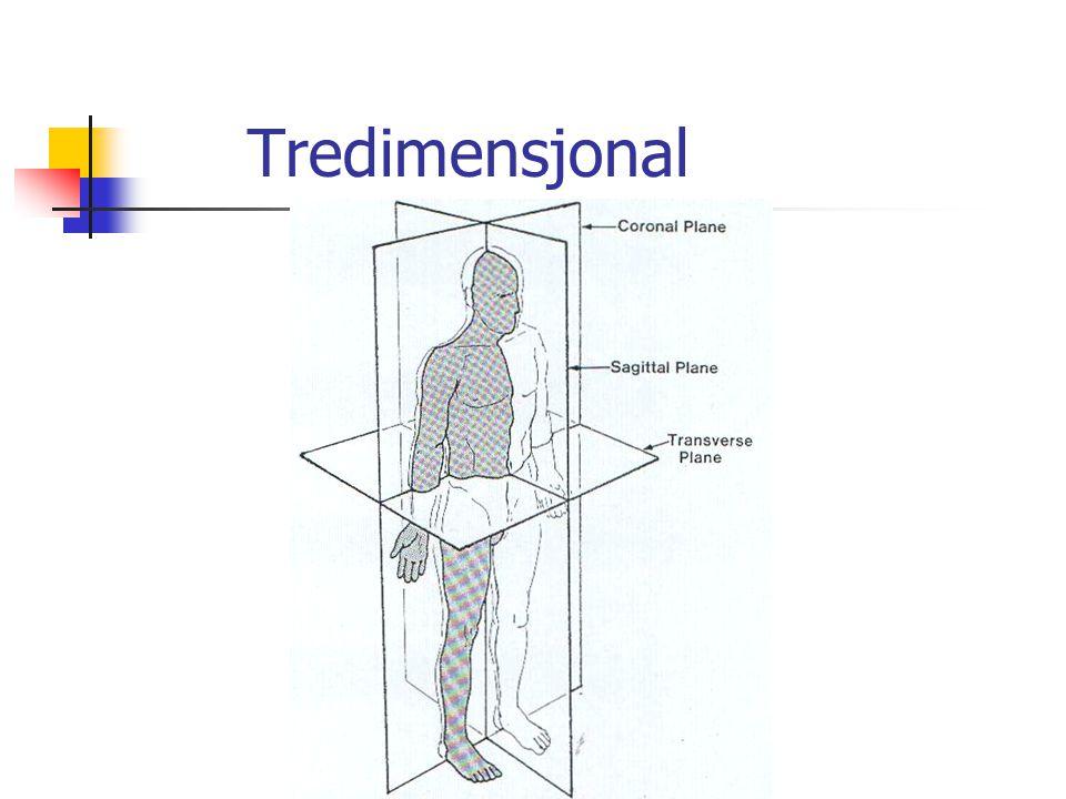 Tredimensjonal
