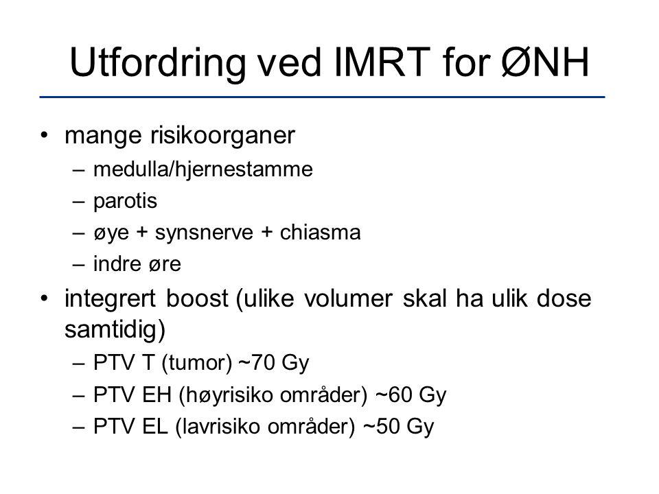 Utfordring ved IMRT for ØNH •mange risikoorganer –medulla/hjernestamme –parotis –øye + synsnerve + chiasma –indre øre •integrert boost (ulike volumer