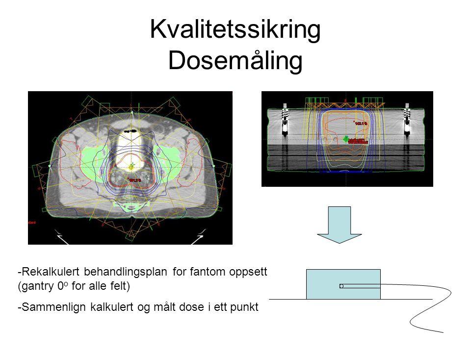 Kvalitetssikring Dosemåling -Rekalkulert behandlingsplan for fantom oppsett (gantry 0 o for alle felt) -Sammenlign kalkulert og målt dose i ett punkt