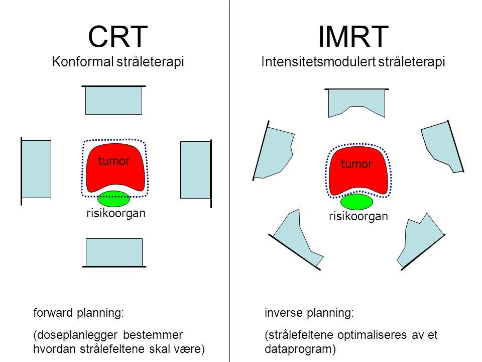 IMRT ved T3b prostatakreft Målvolum: Prostata/ves.sem., lymfeknuter IMRT første 50 Gy, konvensjonell boost siste 20 Gy Risikoorgan: Tarm, rektum, blære