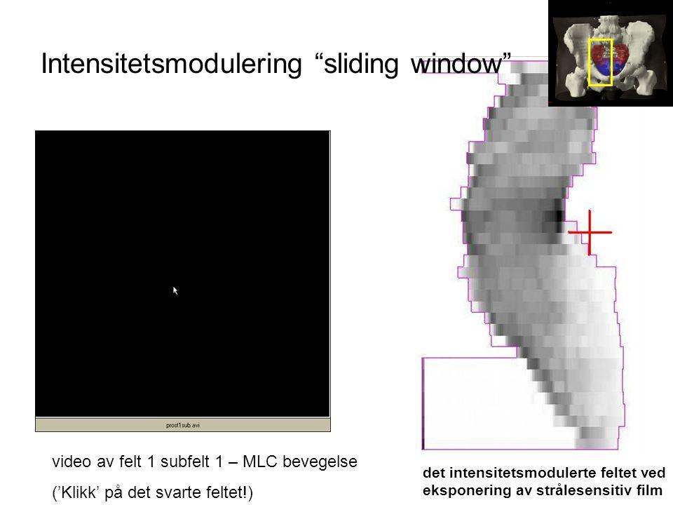 video av felt 1 subfelt 1 – MLC bevegelse ('Klikk' på det svarte feltet!) det intensitetsmodulerte feltet ved eksponering av strålesensitiv film Inten