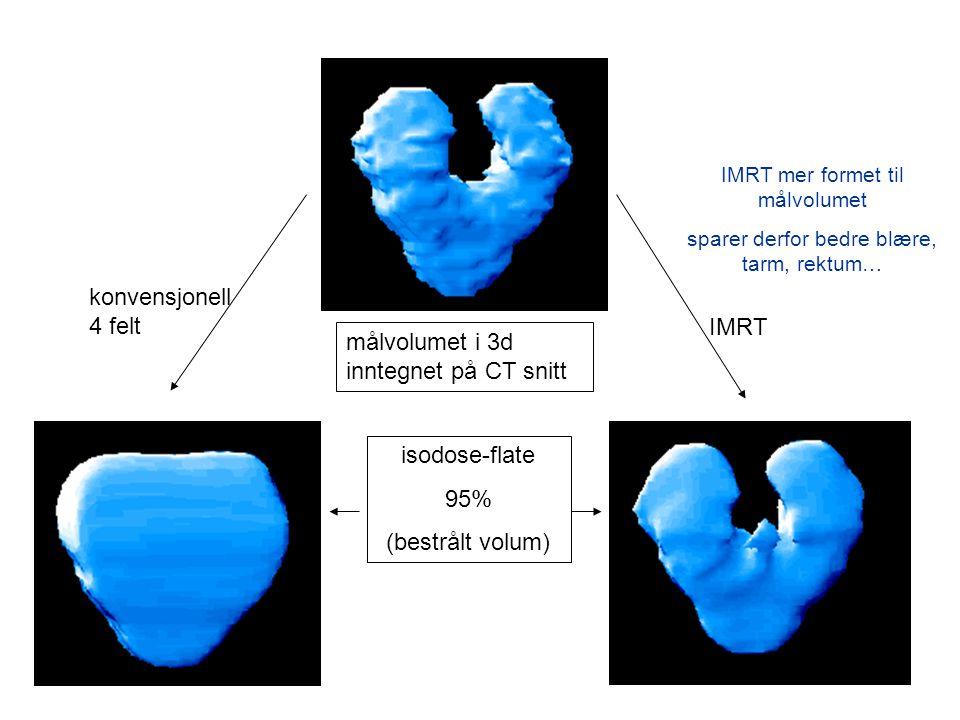 målvolumet i 3d inntegnet på CT snitt IMRT konvensjonell 4 felt isodose-flate 95% (bestrålt volum) IMRT mer formet til målvolumet sparer derfor bedre