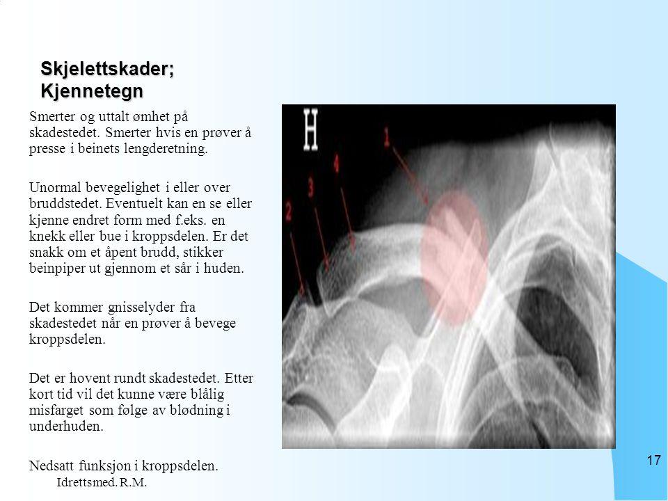 Skjelettskader; Kjennetegn Smerter og uttalt ømhet på skadestedet. Smerter hvis en prøver å presse i beinets lengderetning. Unormal bevegelighet i ell