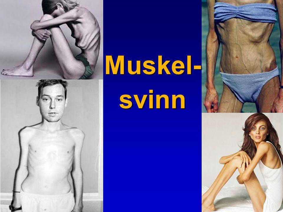 Muskel- svinn