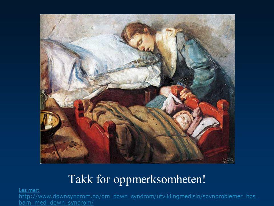 Takk for oppmerksomheten! Les mer: http://www.downsyndrom.no/om_down_syndrom/utviklingmedisin/sovnproblemer_hos_ barn_med_down_syndrom/
