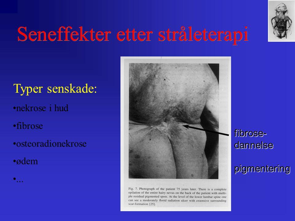 Seneffekter etter stråleterapi fibrose-dannelsepigmentering Typer senskade: •nekrose i hud •fibrose •osteoradionekrose •ødem •...