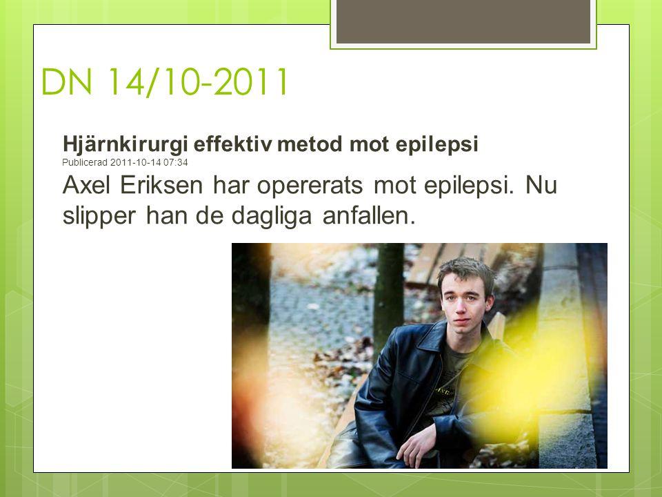 DN 14/10-2011 Hjärnkirurgi effektiv metod mot epilepsi Publicerad 2011-10-14 07:34 Axel Eriksen har opererats mot epilepsi. Nu slipper han de dagliga