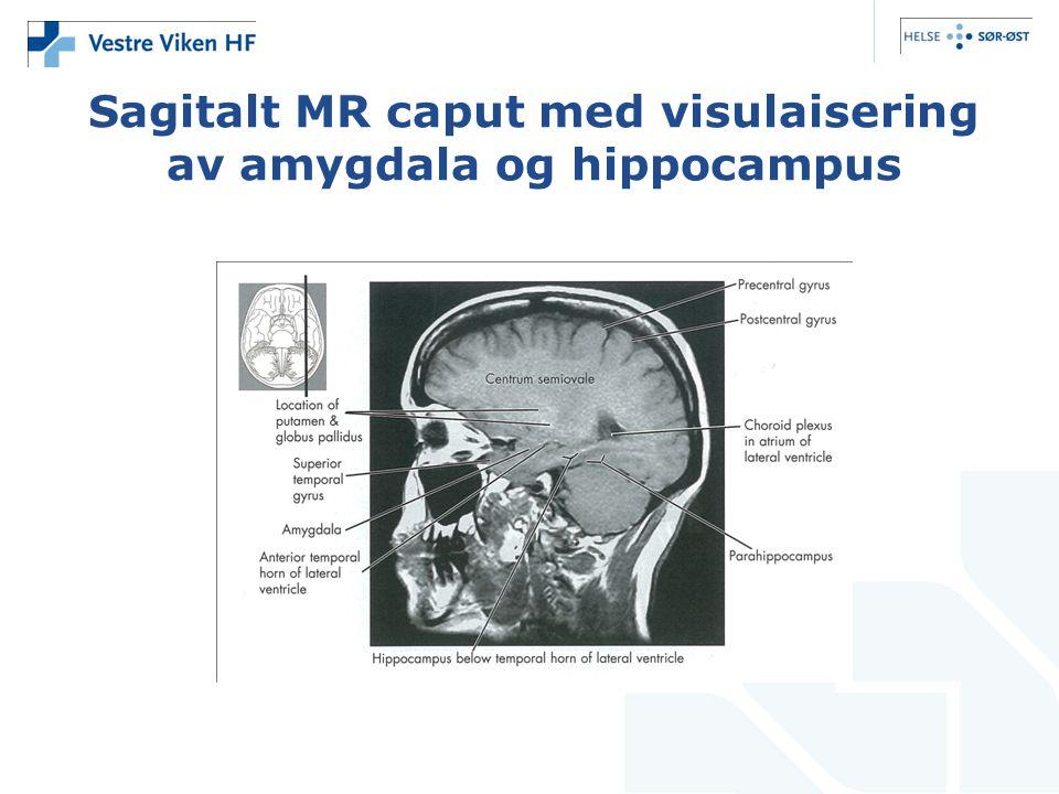 Sagitalt MR caput med visulaisering av amygdala og hippocampus