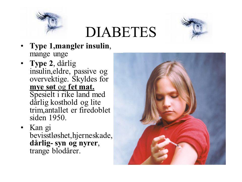 DIABETES •Type 1,mangler insulin, mange unge •Type 2, dårlig insulin,eldre, passive og overvektige. Skyldes for mye søt og fet mat. Spesielt i rike la