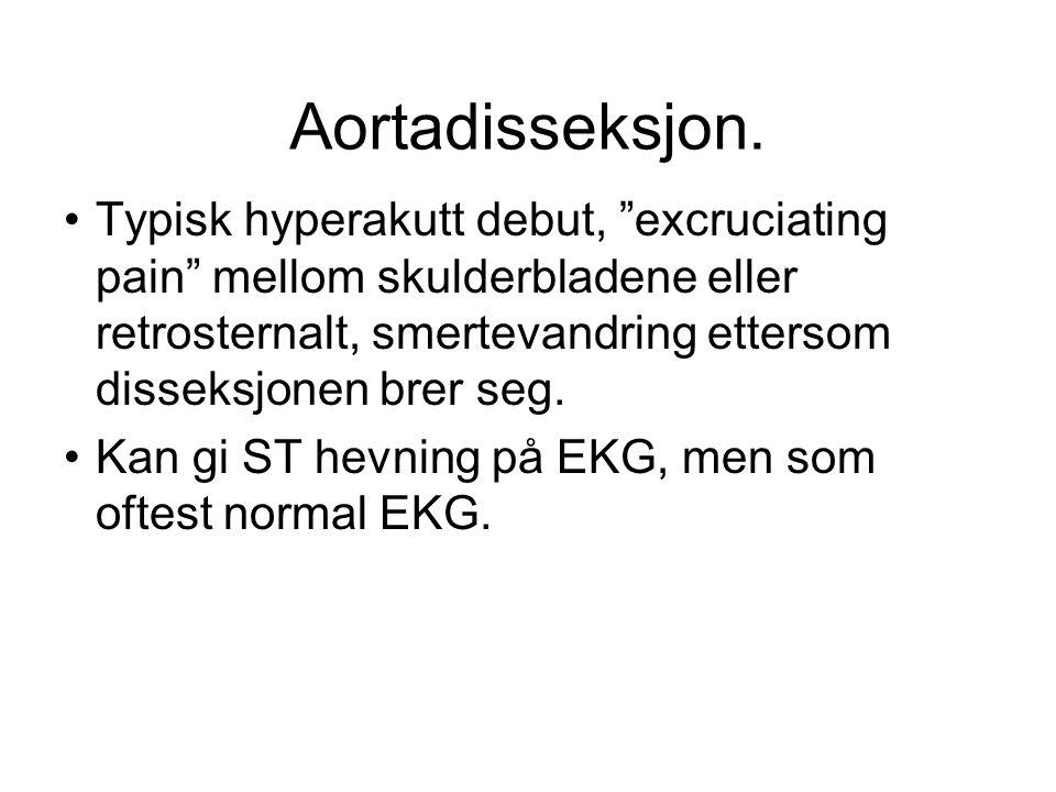 """Aortadisseksjon. •Typisk hyperakutt debut, """"excruciating pain"""" mellom skulderbladene eller retrosternalt, smertevandring ettersom disseksjonen brer se"""