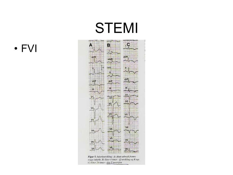 STEMI •FVI