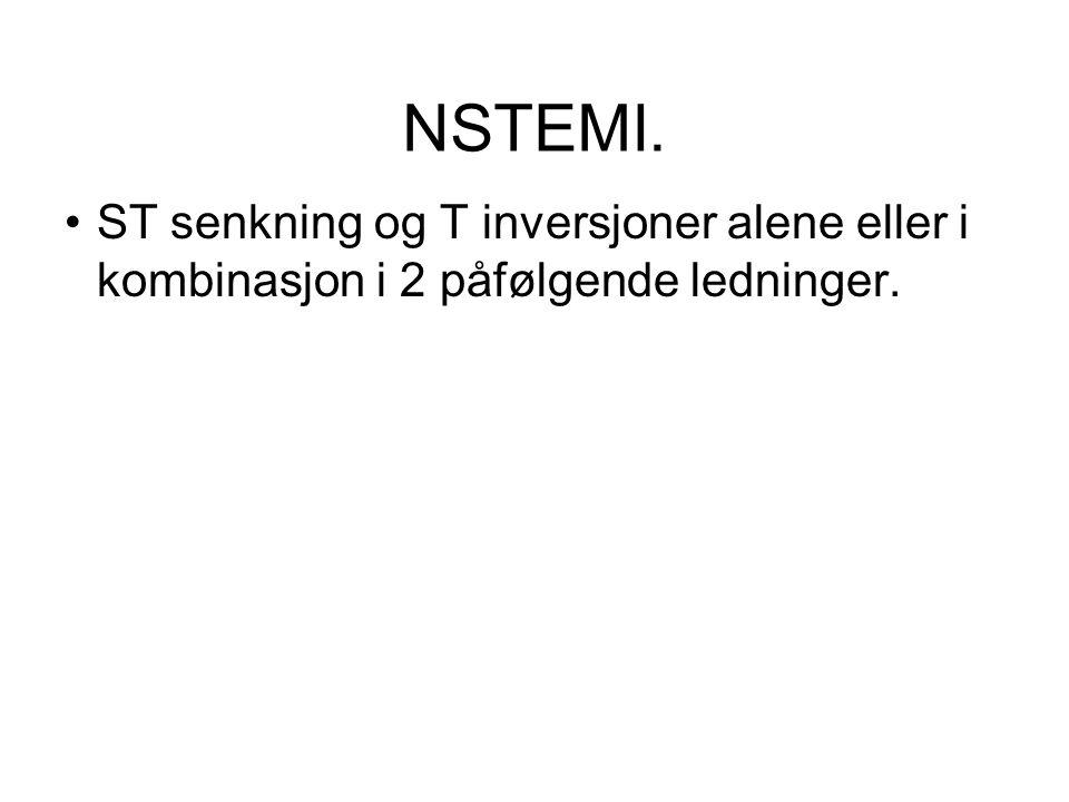 NSTEMI. •ST senkning og T inversjoner alene eller i kombinasjon i 2 påfølgende ledninger.