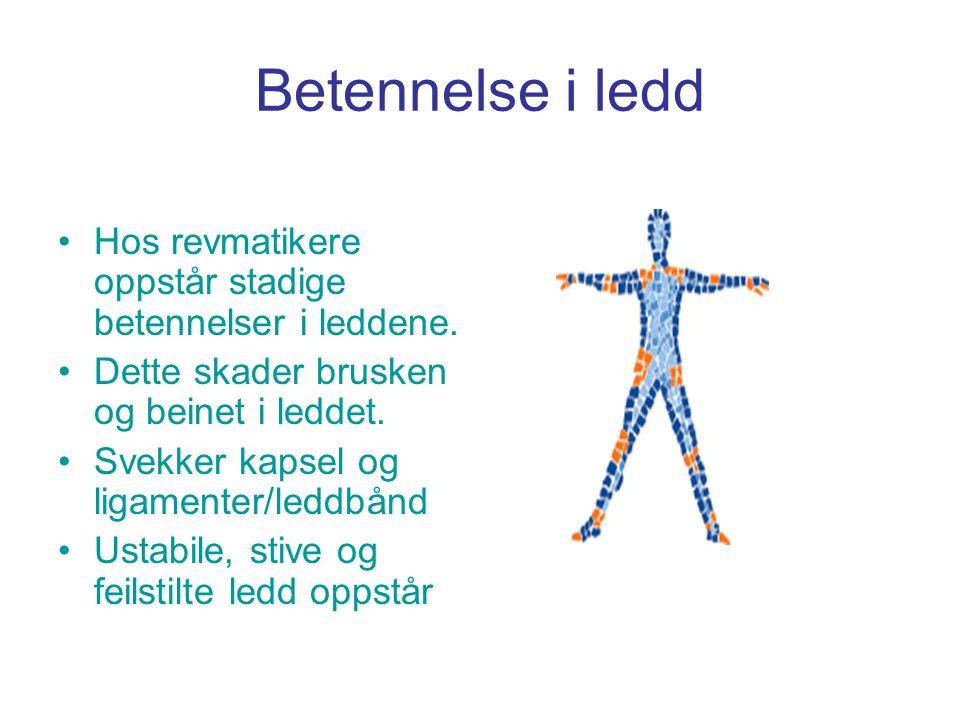 Betennelse i ledd •Hos revmatikere oppstår stadige betennelser i leddene. •Dette skader brusken og beinet i leddet. •Svekker kapsel og ligamenter/ledd