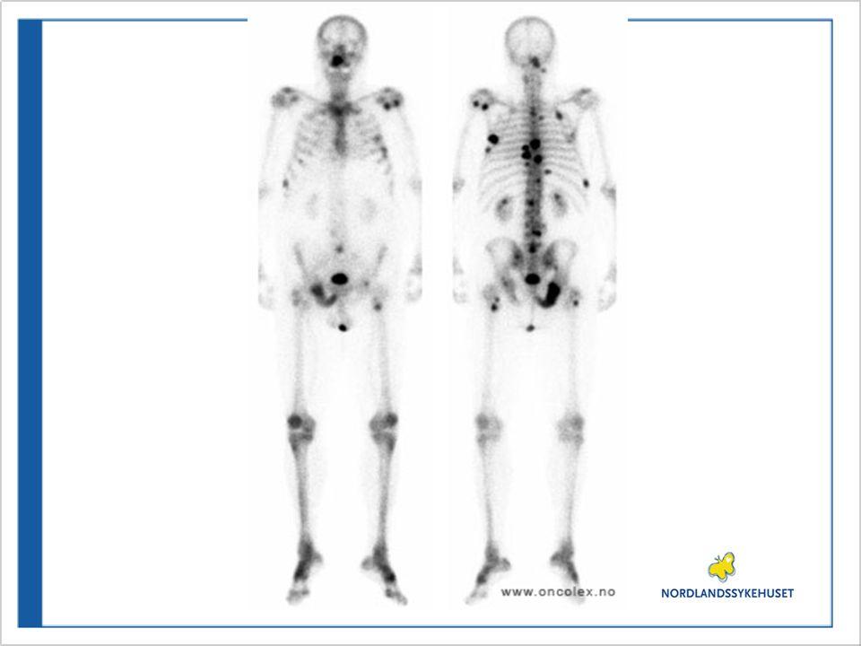 Symptomer og tegn på skjelettmetastaser •Smerter 80% •Nedsatt bevegelighet 65-75% •Fraktur 10-20% •Truende tverrsnitt •Medullakompresjon, cauda equina <5% •Nedsatt benmargsfunksjon 50% •Hyperkalsemi 10-15%