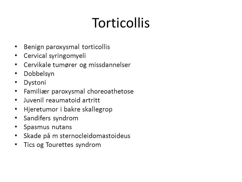Torticollis obs symptomer • Samtidig dystoni i ansikte eller extremiteter – Alltid neurologisk status – Om økte reflekser, klonus, pos Babinski er det sannsynlig skade på corticospinale baner • Tegn til økte trykk intrakraniellt.