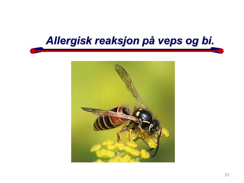 51 Allergisk reaksjon på veps og bi. 51