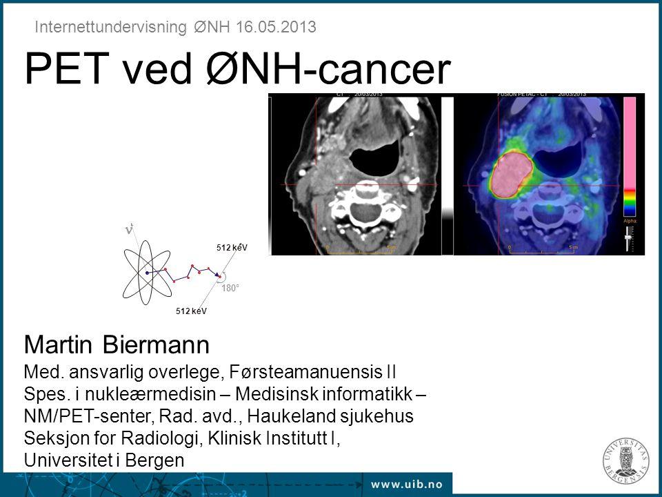 512 keV 180°  PET ved ØNH-cancer Internettundervisning ØNH 16.05.2013 Martin Biermann Med. ansvarlig overlege, Førsteamanuensis II Spes. i nukleærmed