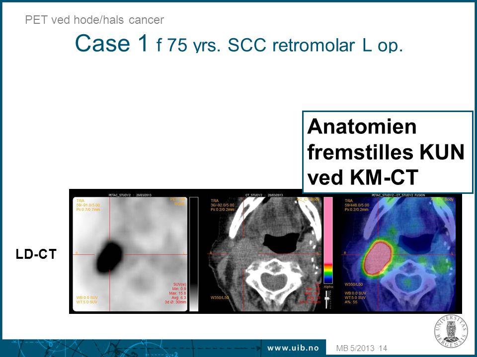 Case 1 f 75 yrs. SCC retromolar L op. MB 5/2013 PET ved hode/hals cancer 14 LD-CT KM-CT Anatomien fremstilles KUN ved KM-CT