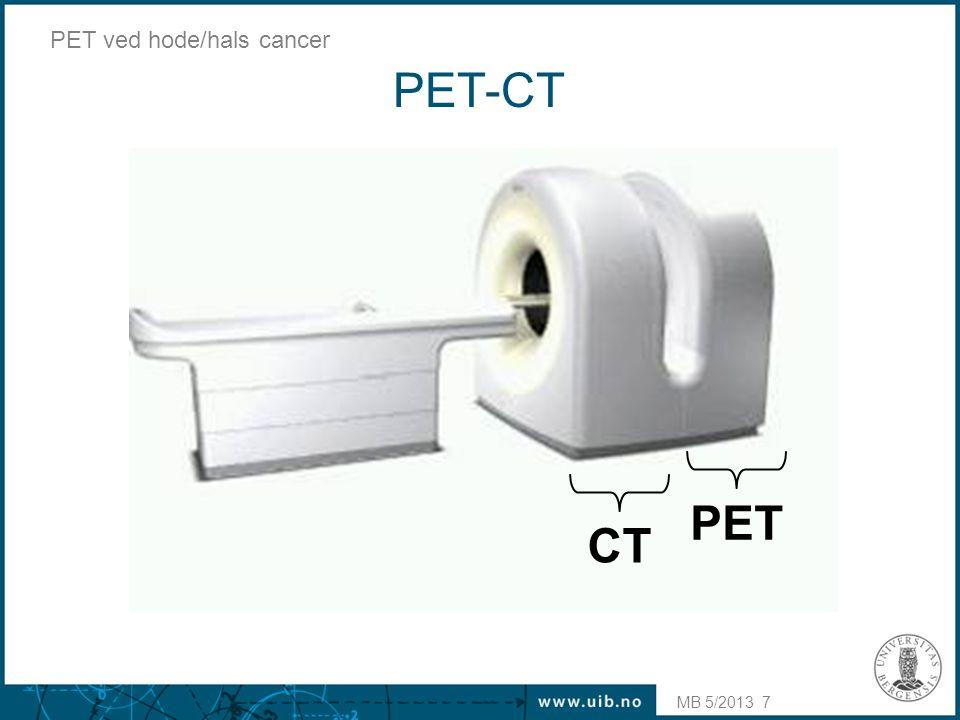 MB 5/2013 PET ved hode/hals cancer F-18-fluorodeoksyglukose (FDG) •Glukose merket med radioaktivt fluor-18 (F-18) •Forbrenning av glukose i kroppen er universell: –normalt: hjerne, hjerte, muskulatur –patologisk: mange solide svulster  kreftdiagnostikk !.