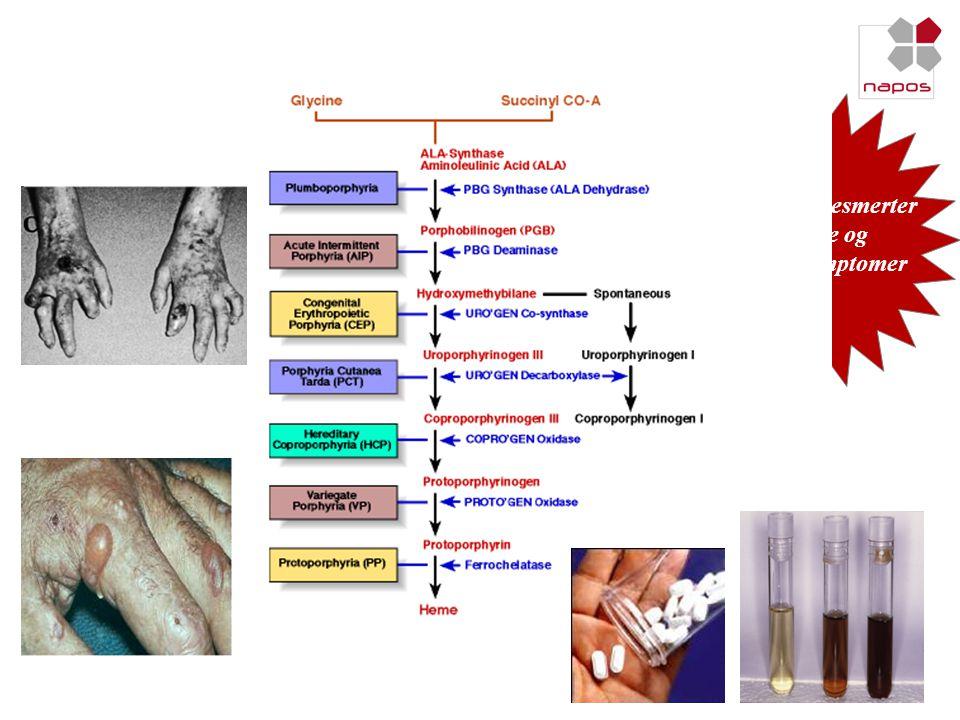 Previous experiences in EPP liver transplantation CLS-200-XTA-81 / similarNo filter Number of liver transplantation 4213425 .