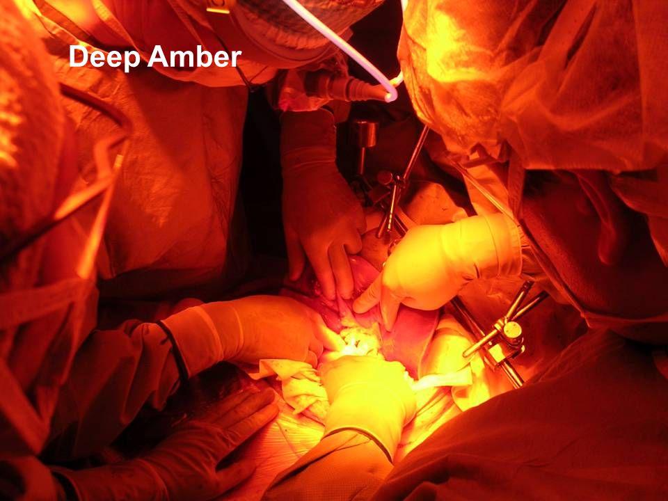A. Brun, NOFFOF 2007 Deep Amber