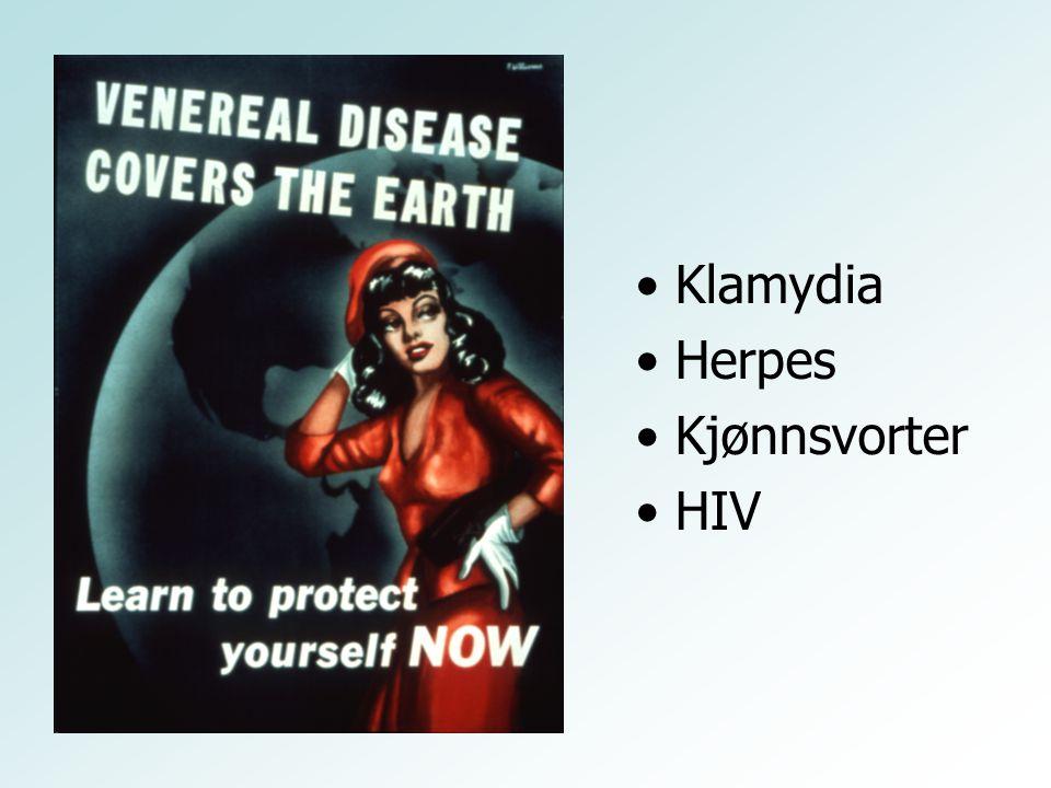 •Klamydia •Herpes •Kjønnsvorter •HIV