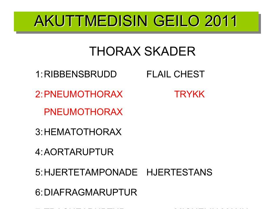 THORAX SKADER 1:RIBBENSBRUDDFLAIL CHEST 2:PNEUMOTHORAXTRYKK PNEUMOTHORAX 3:HEMATOTHORAX 4:AORTARUPTUR 5:HJERTETAMPONADEHJERTESTANS 6:DIAFRAGMARUPTUR 7