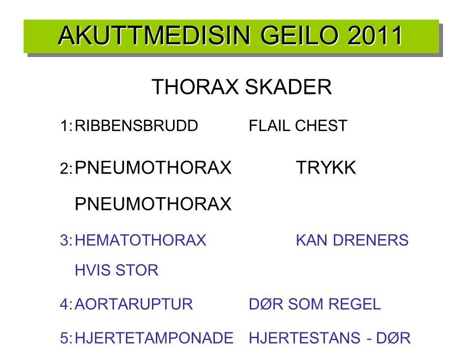 AKUTTMEDISIN GEILO 2011 THORAX SKADER 1:RIBBENSBRUDDFLAIL CHEST 2: PNEUMOTHORAXTRYKK PNEUMOTHORAX 3:HEMATOTHORAXKAN DRENERS HVIS STOR 4:AORTARUPTURDØR