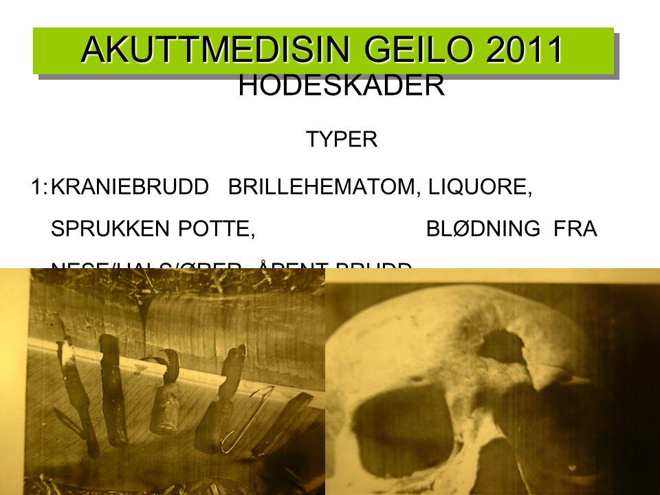 AKUTTMEDISIN GEILO 2011 HODESKADER TYPER 1:KRANIEBRUDDBRILLEHEMATOM, LIQUORE, SPRUKKEN POTTE, BLØDNING FRA NESE/HALS/ØRER, ÅPENT BRUDD 2:EPIDURALE HEM