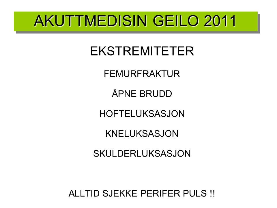 AKUTTMEDISIN GEILO 2011 EKSTREMITETER FEMURFRAKTUR ÅPNE BRUDD HOFTELUKSASJON KNELUKSASJON SKULDERLUKSASJON ALLTID SJEKKE PERIFER PULS !! O2 METNING PÅ