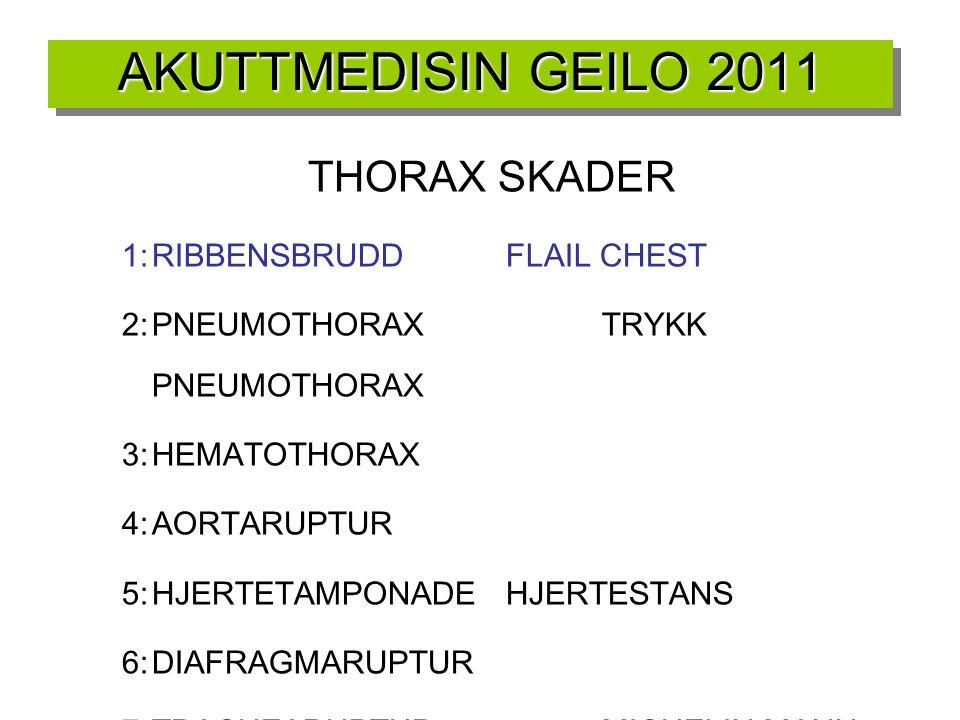 AKUTTMEDISIN GEILO 2011 THORAX SKADER 1:RIBBENSBRUDDFLAIL CHEST 2:PNEUMOTHORAXTRYKK PNEUMOTHORAX 3:HEMATOTHORAX 4:AORTARUPTUR 5:HJERTETAMPONADEHJERTES