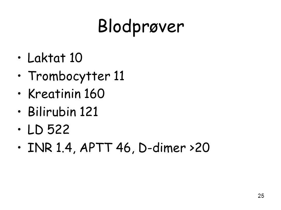 Blodprøver •Laktat 10 •Trombocytter 11 •Kreatinin 160 •Bilirubin 121 •LD 522 •INR 1.4, APTT 46, D-dimer >20 25