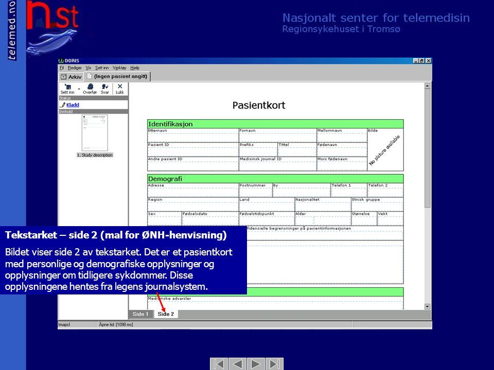 Tekstarket – side 2 (mal for ØNH-henvisning) Bildet viser side 2 av tekstarket. Det er et pasientkort med personlige og demografiske opplysninger og o