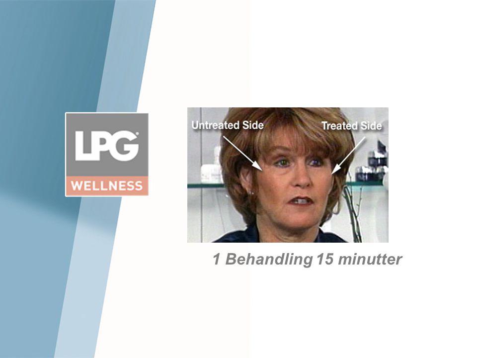 1 Behandling 15 minutter