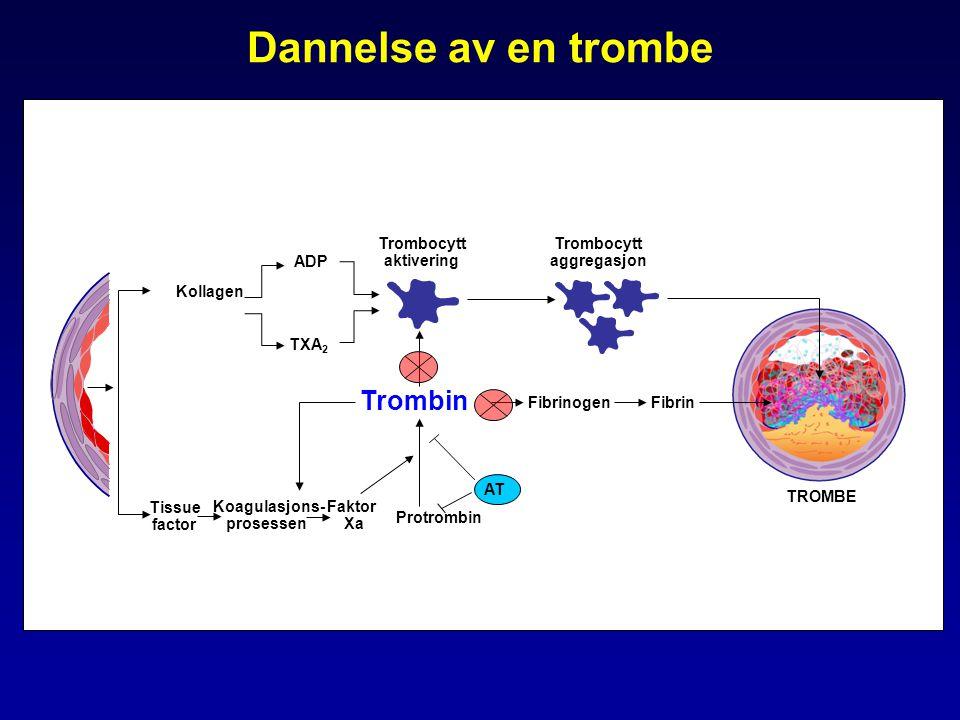 Dannelse av en trombe Kollagen Tissue factor Trombin Trombocytt aktivering Protrombin ADP TXA 2 Koagulasjons- prosessen TROMBE FibrinogenFibrin Trombocytt aggregasjon AT Faktor Xa