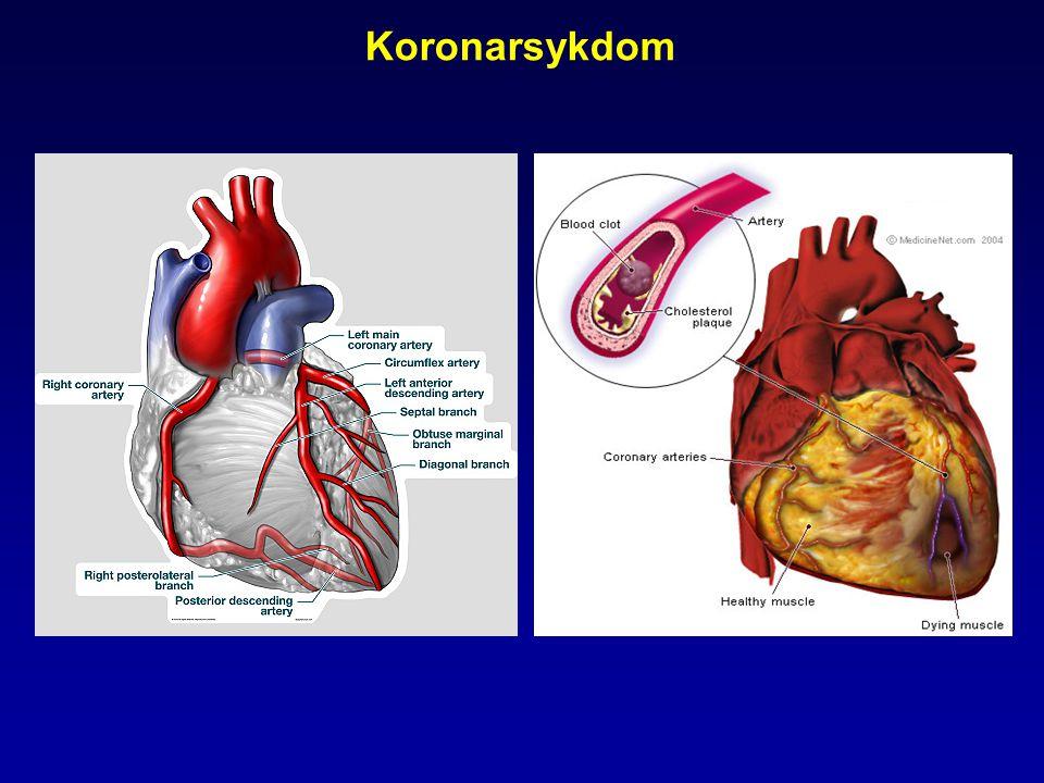 Utvikling av atherosklerose Endotel-dysfunksjon Ross. N Engl J Med. 1999