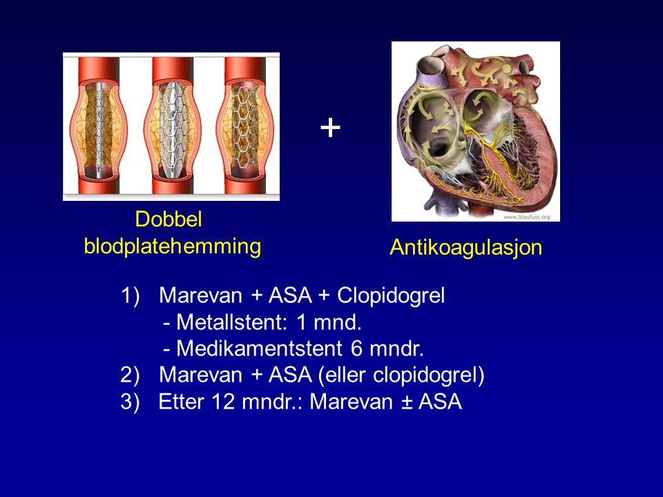 Dobbel blodplatehemming Antikoagulasjon + 1)Marevan + ASA + Clopidogrel - Metallstent: 1 mnd.
