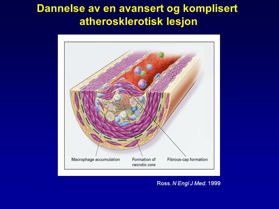 Dannelse av en avansert og komplisert atherosklerotisk lesjon Ross. N Engl J Med. 1999