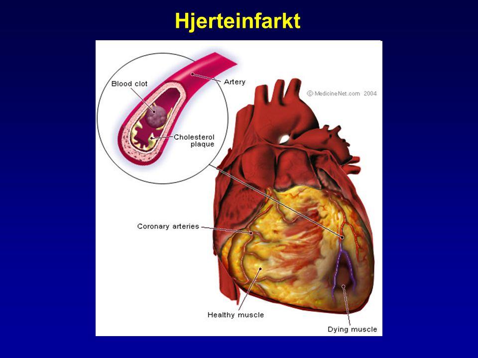 Koronarsykdom •Non-ST-elevasjons myokardinfarkt (NSTEMI) •Ustabil angina pectoris - Klinikk, ST-depresjon el.
