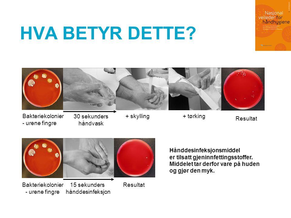 NY FAGLIG ANBEFALING Hånddesinfeksjonsmiddel er førstevalget Hånddesinfeksjonsmiddel: •er enklere og raskere enn håndvask •har bedre effekt enn håndvask, •er bedre for huden enn håndvask •er billigere enn håndvask Håndvask brukes når hendene er synlig forurenset