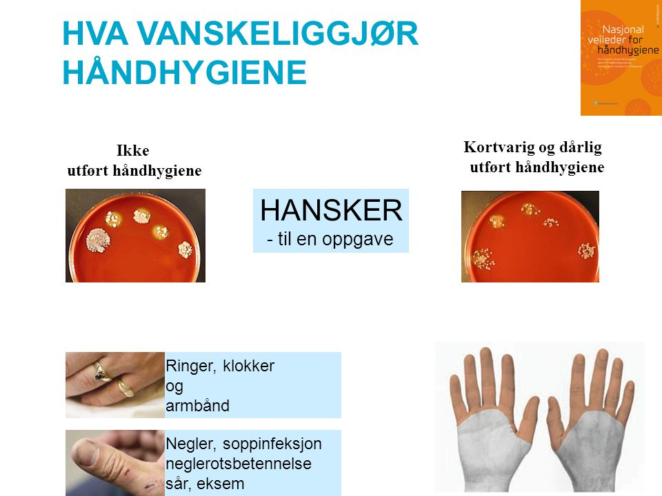 UTFORDRINGER I KAMPANJEN Ha tiltro til EFFEKT : •Helsearbeidere har liten tro på hånddesinfeksjon.