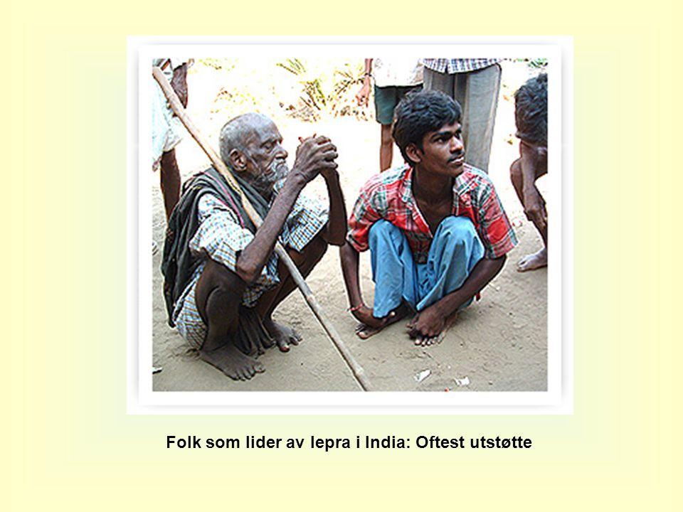 Folk som lider av lepra i India: Oftest utstøtte