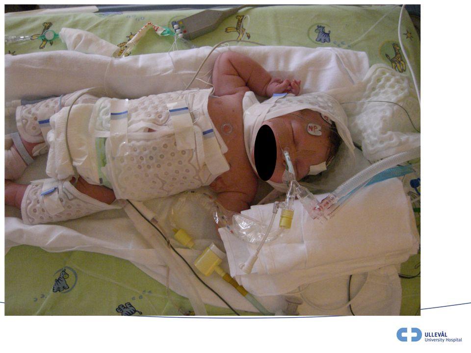 Sedering •Alle barn som hypotermibehandles anbefales å være sederte, også selvpustende barn.