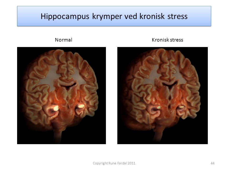 Hippocampus krymper ved kronisk stress NormalKronisk stress 44Copyright Rune Fardal 2011